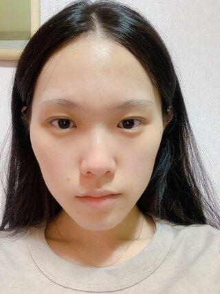 DA美容外科の輪郭、鼻の症例写真(ビフォー)