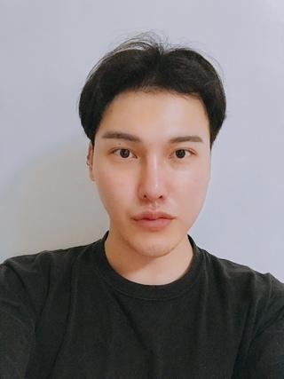 DA美容外科の両顎の症例写真(ビフォー)