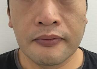 東郷美容形成外科 福岡のクレオパトラノーズの症例写真(ビフォー)