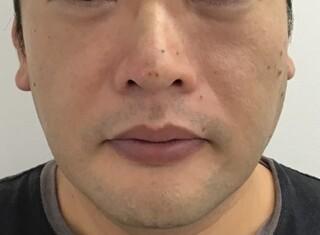 東郷美容形成外科 福岡のクレオパトラノーズの症例写真(アフター)