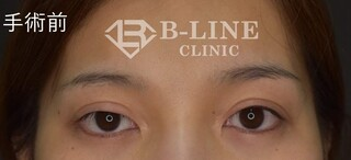 B-LINE CLINICの他院右二重切開修正、右眼瞼下垂手術(切開法)+右目の上たるみ取りの症例写真(ビフォー)