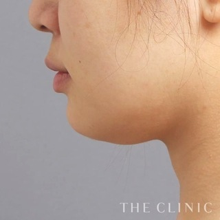 THE CLINIC(ザ・クリニック)名古屋院の顔(頬・顎)のベイザー脂肪吸引の症例写真(ビフォー)