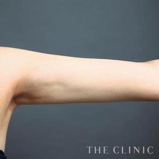 THE CLINIC(ザ・クリニック)東京院の二の腕のベイザー脂肪吸引の症例写真(アフター)