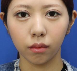 オザキクリニックLUXE新宿の人中短縮+口角挙上の症例写真(アフター)