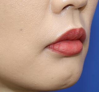 オザキクリニックLUXE新宿の口角挙上の症例写真(ビフォー)
