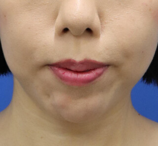 オザキクリニックLUXE新宿の人中短縮+口角挙上の症例写真(ビフォー)