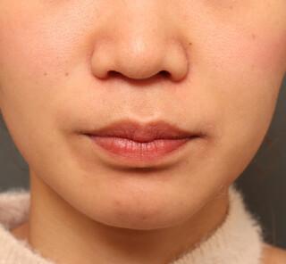 オザキクリニックLUXE新宿の人中短縮+口角挙上+耳介軟骨移植の症例写真(ビフォー)