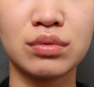 オザキクリニックLUXE新宿の人中短縮+口角挙上+耳介軟骨移植の症例写真(アフター)