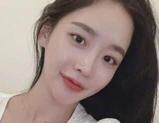 ラビアン美容整形外科の頬骨縮小術+エラ・Vライン+バッカルファット除去の症例写真(アフター)