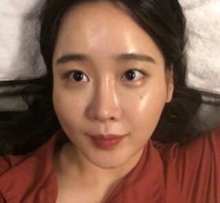 ラビアン美容整形外科の頬骨縮小術+エラ・Vライン+バッカルファット除去の症例写真(ビフォー)