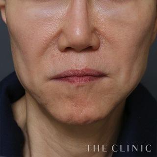 THE CLINIC(ザ・クリニック)名古屋院のこけた頬への脂肪注入の症例写真(ビフォー)
