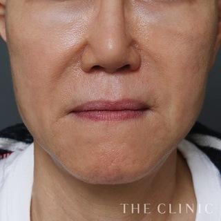 THE CLINIC(ザ・クリニック)名古屋院のこけた頬への脂肪注入の症例写真(アフター)