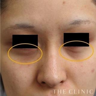 THE CLINIC(ザ・クリニック)名古屋院の目の下のクマへのマイクロCRF注入の症例写真(ビフォー)