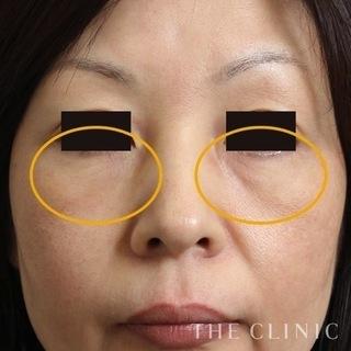 THE CLINIC(ザ・クリニック)大阪院の目の下のクマ・たるみへのマイクロCRF注入の症例写真(アフター)