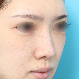 ヴェリテクリニック大阪院の眉間プロテーゼ挿入術の症例写真(ビフォー)