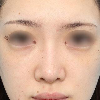 ヴェリテクリニック大阪院の眉間プロテーゼ挿入術の症例写真(アフター)
