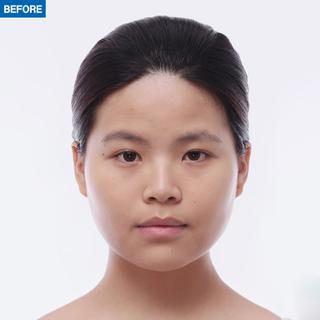 マーブル整形外科の二重切開、鼻筋+鼻先+鷲鼻矯正の症例写真(ビフォー)