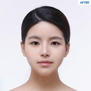 マーブル整形外科の二重切開、鼻筋+鼻先+鷲鼻矯正の症例写真(アフター)