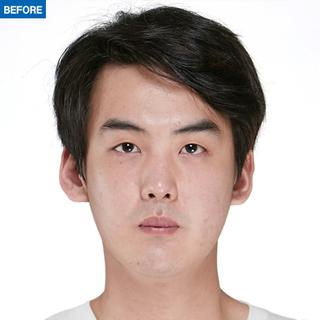 マーブル整形外科の自然癒着、目の下脂肪再配置、鼻筋+鼻先+鷲鼻矯正の症例写真(ビフォー)