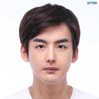 マーブル整形外科の自然癒着、目の下脂肪再配置、鼻筋+鼻先+鷲鼻矯正の症例写真(アフター)