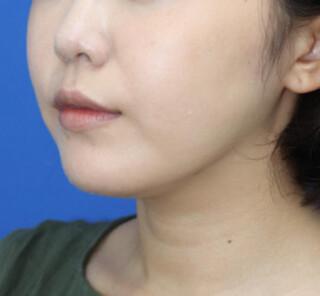 オザキクリニックLUXE新宿の顔の脂肪吸引(メーラーファット+バッカルファット)の症例写真(アフター)