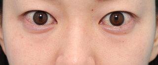 ヴェリテクリニック大阪院の下眼瞼脱脂の症例写真(ビフォー)