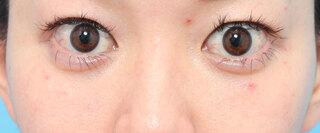 ヴェリテクリニック大阪院の下眼瞼脱脂の症例写真(アフター)