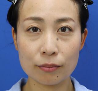 オザキクリニックLUXE新宿の3Dリポアイリフトの症例写真(ビフォー)
