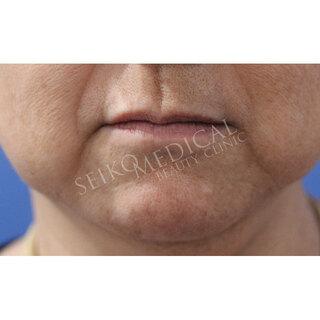 セイコメディカルビューティクリニック 鹿児島院の脂肪溶解引き締め注射(BNLS NEO)の症例写真(ビフォー)