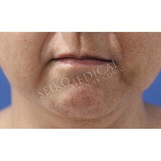 セイコメディカルビューティクリニック 鹿児島院の脂肪溶解引き締め注射(BNLS NEO)の症例写真(アフター)