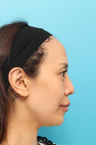 ヴェリテクリニック大阪院の鼻中隔延長術の症例写真(ビフォー)