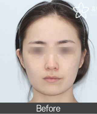 ヒューマン美容整形外科の33. エラ削り+リフトアップの症例写真(ビフォー)