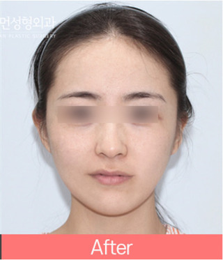 ヒューマン美容整形外科の33. エラ削り+リフトアップの症例写真(アフター)