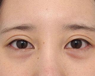 ヴェリテクリニック大阪院のグラマラスライン(結膜側)の症例写真(ビフォー)