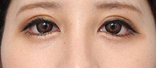 ヴェリテクリニック大阪院のグラマラスライン(結膜側)の症例写真(アフター)