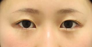 東京イセアクリニック銀座院の【デザイン変更無料!】イセアのたれ目形成の症例写真(アフター)