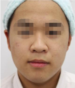 MIYAフェイスクリニックのサリチル酸マクロゴールピーリングの症例写真(ビフォー)