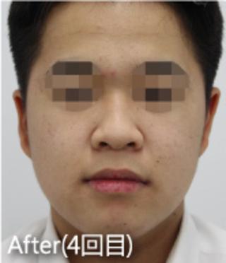 MIYAフェイスクリニックのサリチル酸マクロゴールピーリングの症例写真(アフター)
