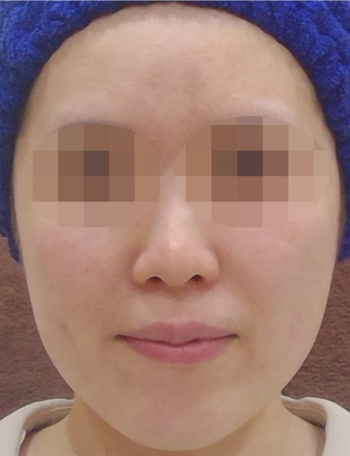 MIYAフェイスクリニックのウルトラセルQプラスの症例写真(ビフォー)
