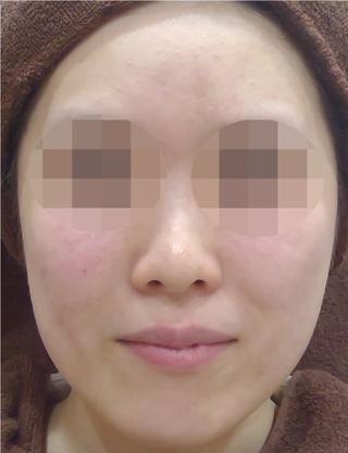 MIYAフェイスクリニックのウルトラセルQプラスの症例写真(アフター)