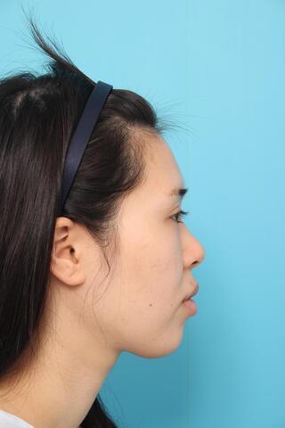 ヴェリテクリニック大阪院の鼻中隔延長の症例写真(ビフォー)