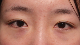 2060 OSKIN整形外科医院の目つき矯正の症例写真(ビフォー)