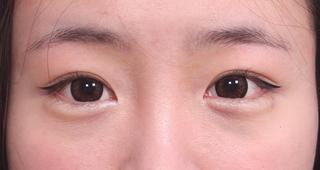 2060 OSKIN整形外科医院の目つき矯正の症例写真(アフター)