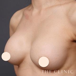 THE CLINIC(ザ・クリニック)大阪院のシリコンバッグ豊胸の修正(バッグ除去+脂肪注入豊胸)の症例写真(ビフォー)