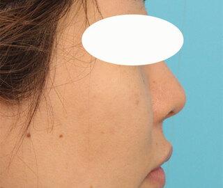 ヴェリテクリニック大阪院の鼻中隔延長・隆鼻術の症例写真(ビフォー)