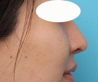 ヴェリテクリニック大阪院の鼻中隔延長・隆鼻術の症例写真(アフター)