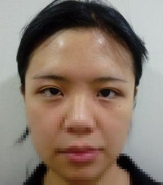 GDS美容外科の切開+眼瞼下垂+目頭切開の症例写真(ビフォー)