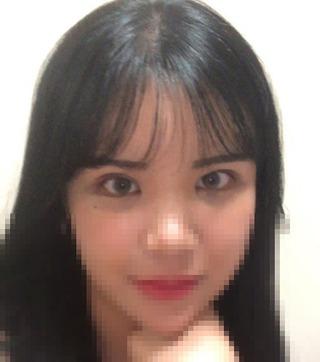 GDS美容外科の切開+眼瞼下垂+目頭切開の症例写真(アフター)