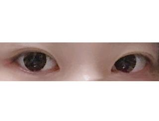 GDS美容外科の目頭切開の症例写真(アフター)