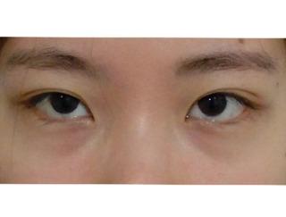 GDS美容外科の目頭切開の症例写真(ビフォー)